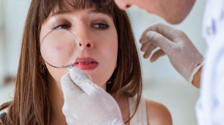 Ako liečiť akné?